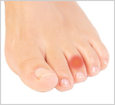 Claw Toes Foot Solutions Plymouth